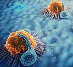 rák áttétes a nyirokcsomó hónaljához
