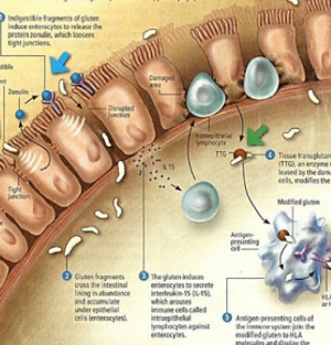 dysbiosis és szivárgó bél