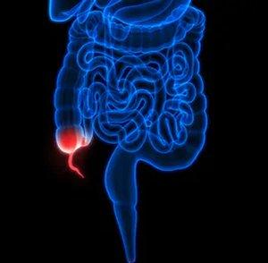 1. étrend feltételezett appendicitis esetén)